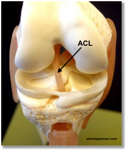 ACL in tact - model